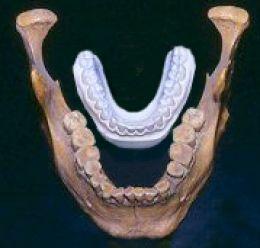 Nel 1931 sono stati trovati due scheletri in un letto di un lago. uno