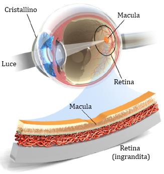 occhio macula
