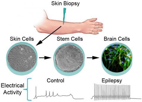 staminali epilessia